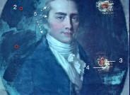 Johann Friedrich August Tischbein, Christoph Wilhelm Hufeland, 1798, Öl auf Leinwand, FDH, Inv.-Nr. IV-1950-006; UV-Aufnahme